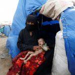 Perché ci dimentichiamo dello Yemen