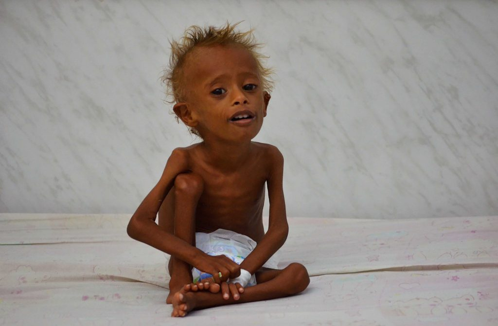bimbi-yemen