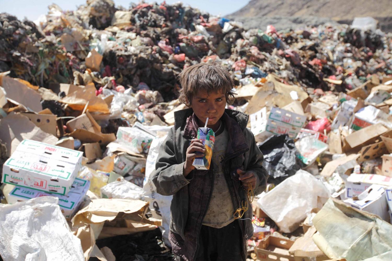 Risultati immagini per Bambini vittime del conflitto yemen