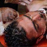"""Attacco chimico a Douma: <br>""""Ci sono almeno 100 morti"""""""