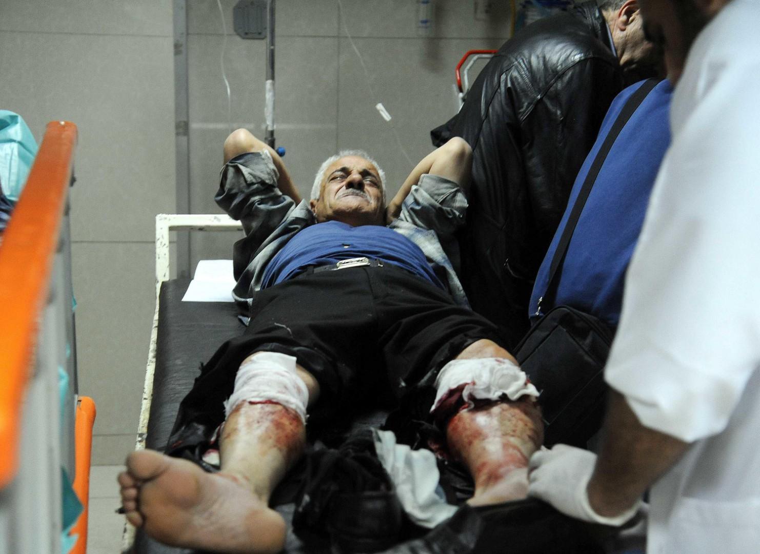 Un uomo feriti dai colpi di mortaio lanciati ieri dai jihadisti della Douma