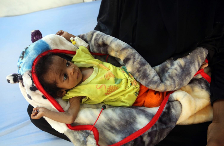Una donna tiene in braccio un bambino denutrito dello Yemen (Afp) 8acc737eaa0f