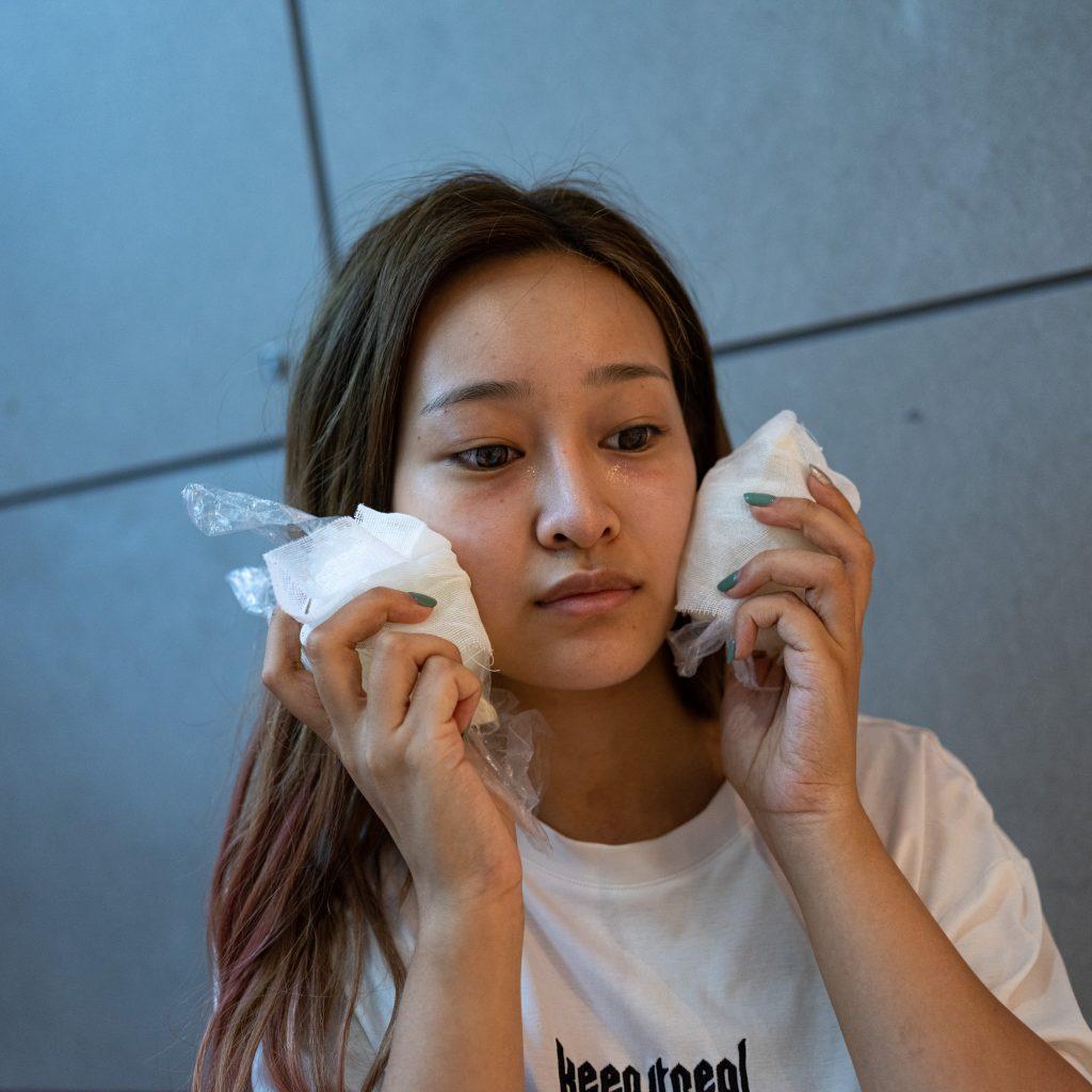 Una giovane ragazza con le lacrime agli occhi per i trattamenti estetici appena ricevuti in un'esclusiva clinica di chirurgia estetica a Wuxi