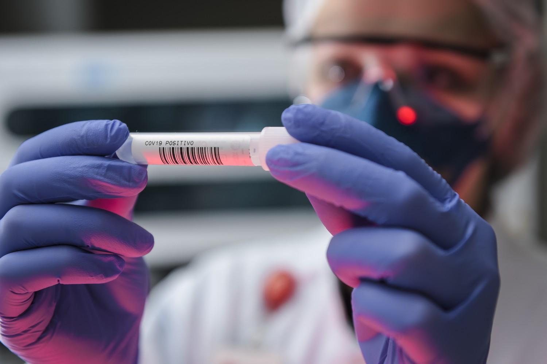 Una ricombinazione di genomi: come si è originato il coronav
