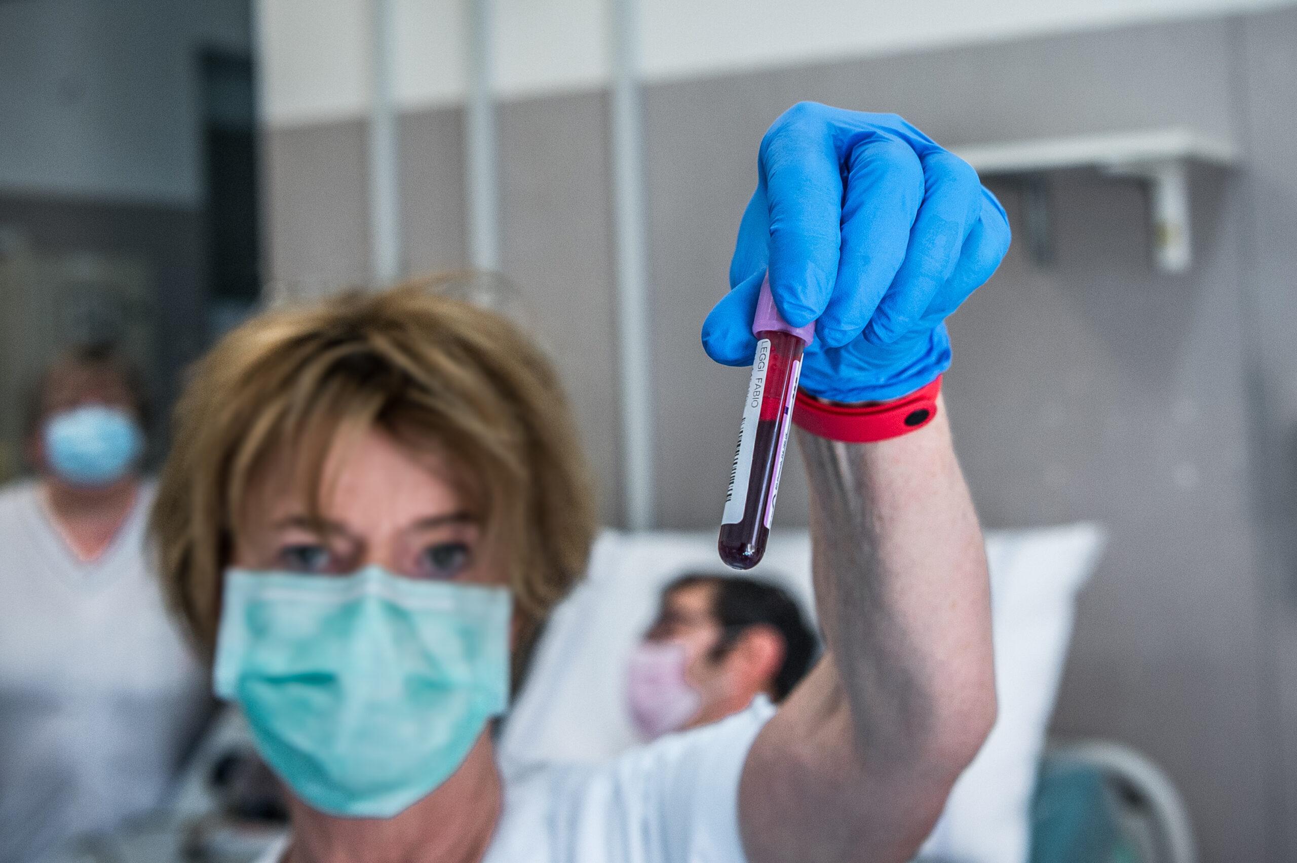 Cos'è successo alla cura del plasma iperimmune
